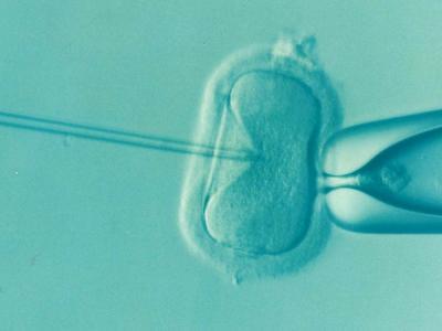 5 Datos Clave Sobre La Congelación De óvulos