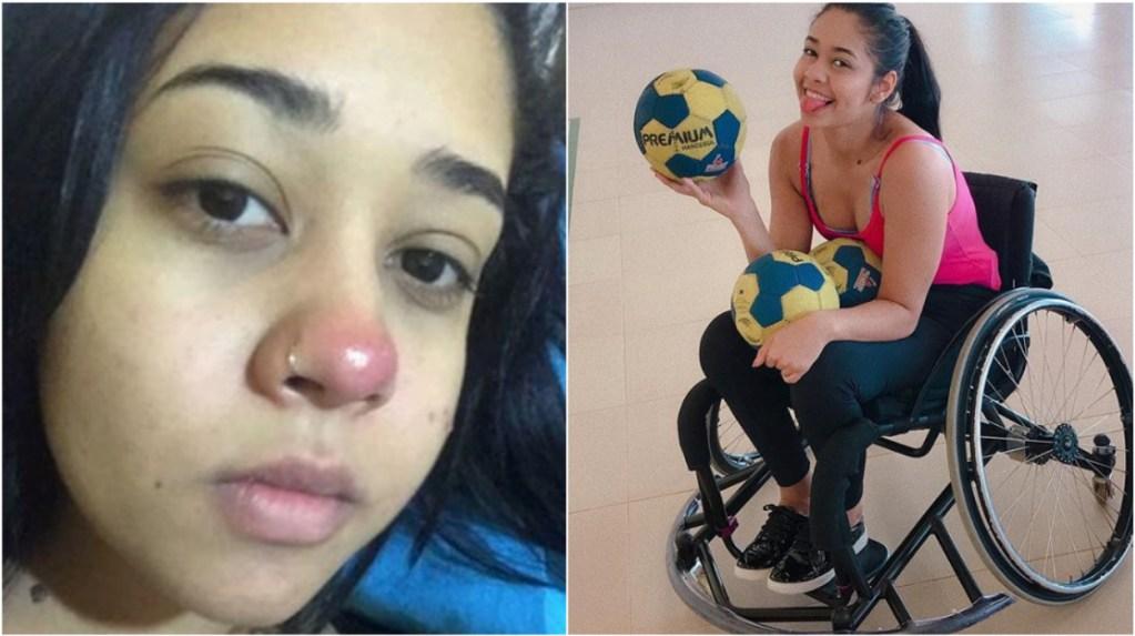 Joven De 20 Años Relata Como Un Piercing En Su Nariz La Dejó Parapléjica