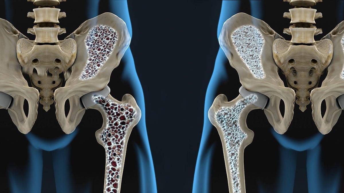 ¿Sabes Qué Es La Osteoporosis Y Cuáles Son Sus Factores De Riesgo?